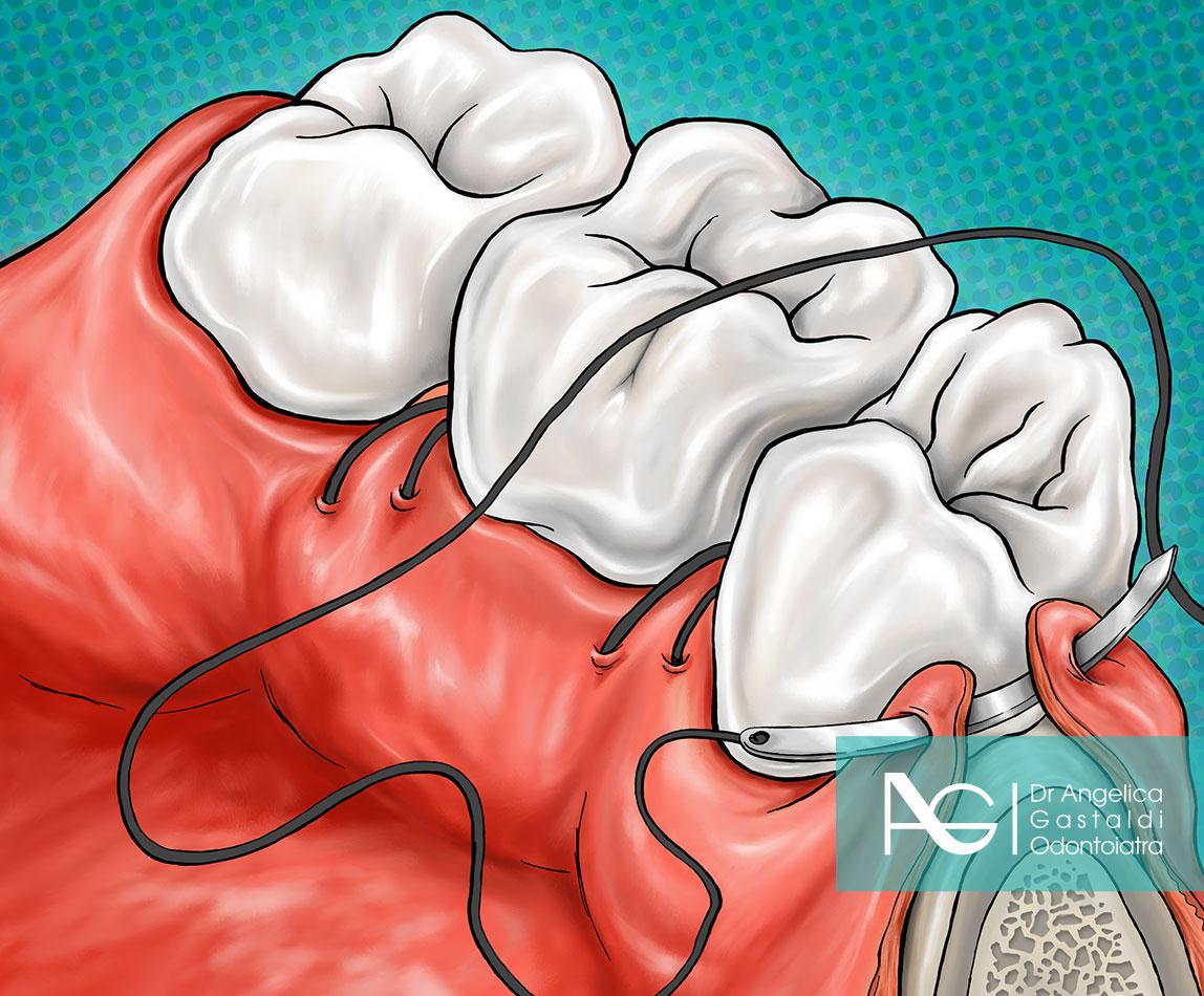illustrazione chirurgia orale